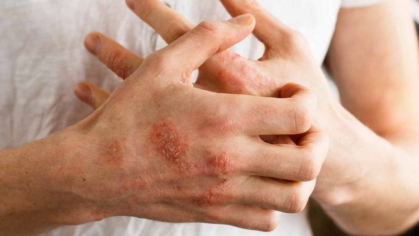 Best treatment for psoriasis
