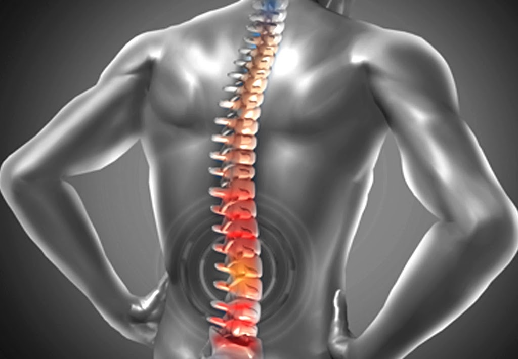 Surgery for Spine Pain