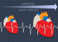 exercise and heart disease