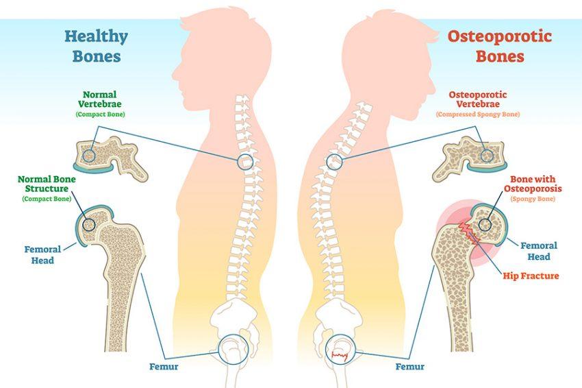Healthy Bone Structure