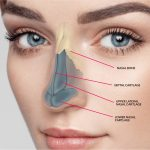 Rhinoplasty is to Improve the Appearance of your Nose