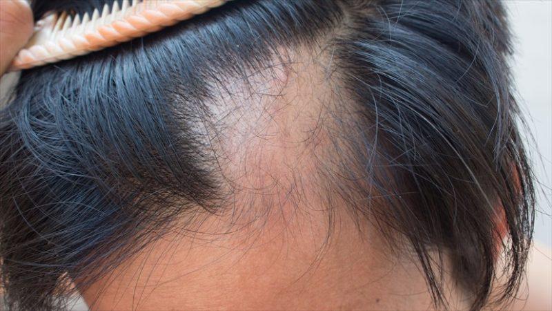 HAIR DISEASE