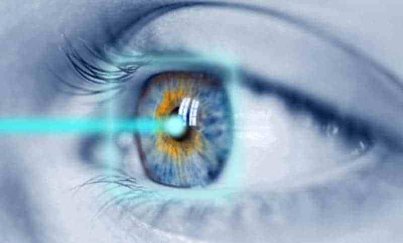 LASIK eye Procedure