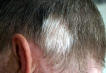 What Causes White Hair at a Young Age