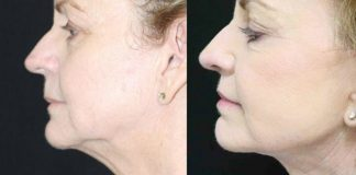 What to Expect During Neck and Jawline Lift Recovery