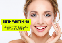 Teeth Whitening - Prevention Tips and Home Remedies